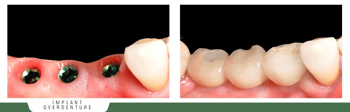 تصویر ایمپلنت دنچر قبل و بعد از گذاشتن دنچر