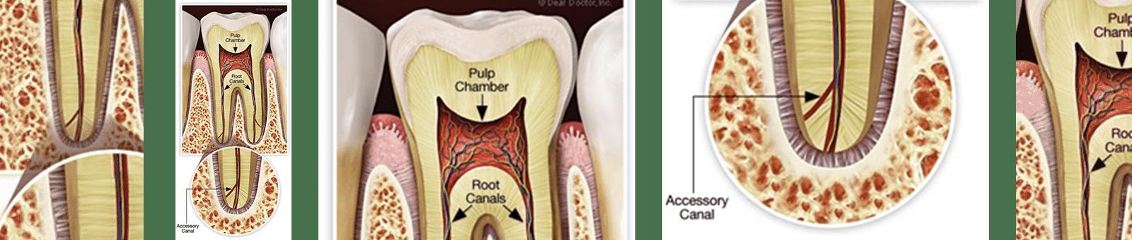 تصویری که عفونت ریشه دندان را نشان می دهدکه نیازمند درمان ریشه مجدد است