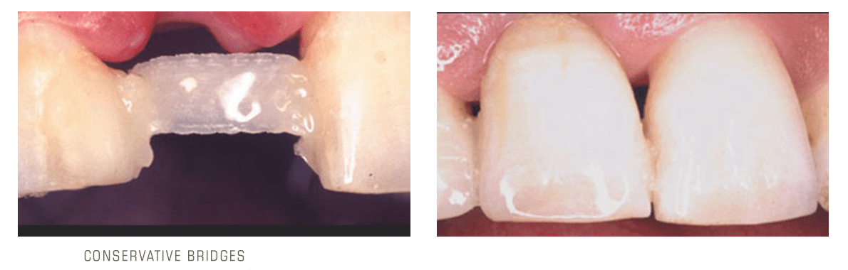 تصویر یانواع بریج دندان محافظه کارانه