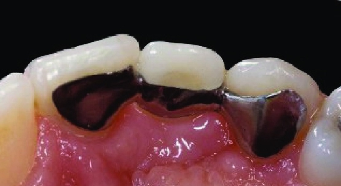بریج دندان محافظه کارانه