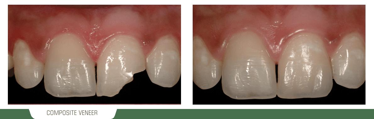 تصویر قبل و بعد دندانی که دچار شکستگی وسیع شده ولی با درمان ونیر کامپوزیت بهبود یافته