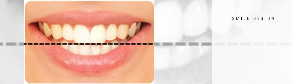 تراز افقی دندان ها در اصلاح طرح لبخند