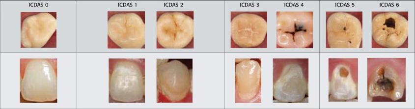 انواع کلاس پوسیدگی دندان و نحوه ترمیم یا پر کردن دندان های پوسیده