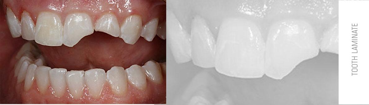 تصوی دندان لب پر شده در فک بالا