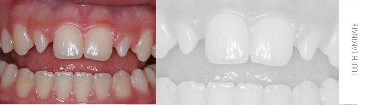 تصویر دندان های ثنایای دوم
