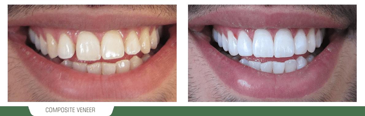 تصویر یک لبخند قبل و بعد از دمان ونیر کامپوزیت