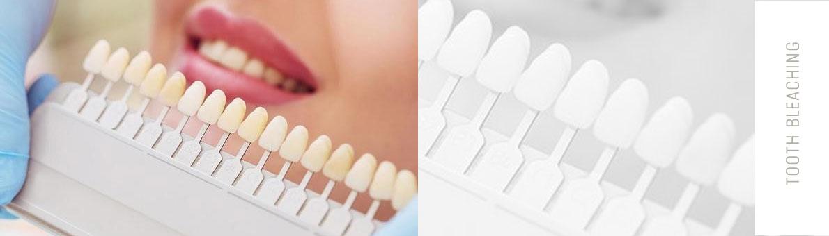 اهمیت پیدا کردن علت تغییر رنگ دندان ها قبل از بلیچینگ دندان
