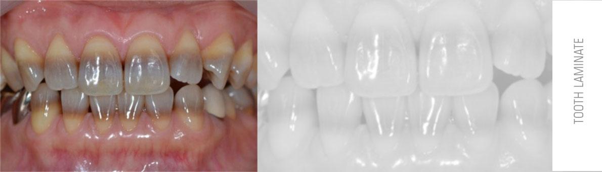 تصور دندان هایی که به واسطه مصرف تتراسایکلین دچار تغییر رنگ شده و لمینت سرامیکی