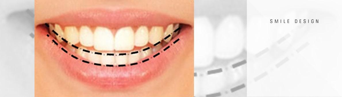 خط لبخند به عنوان یکی از ویژگی های لبخند زیبا
