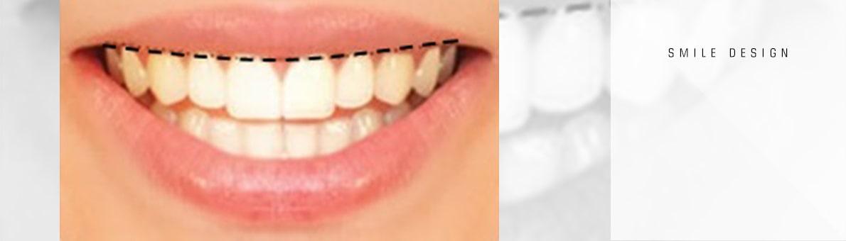 خط لثه در طراحی لبخند