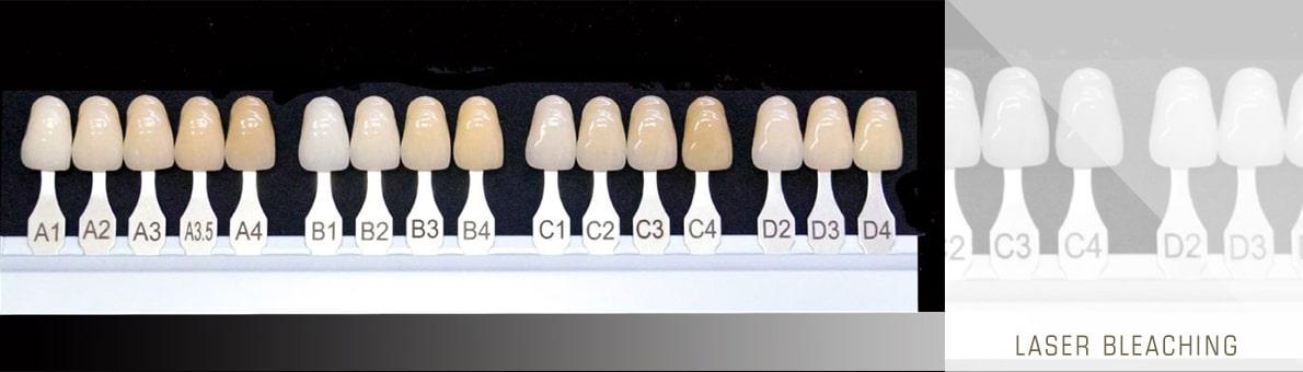 بلیچینگ با لیزر - تصویر سایه رنگ های بکار رفته برای مشخص کردن درصد سفید شدن دندان ها