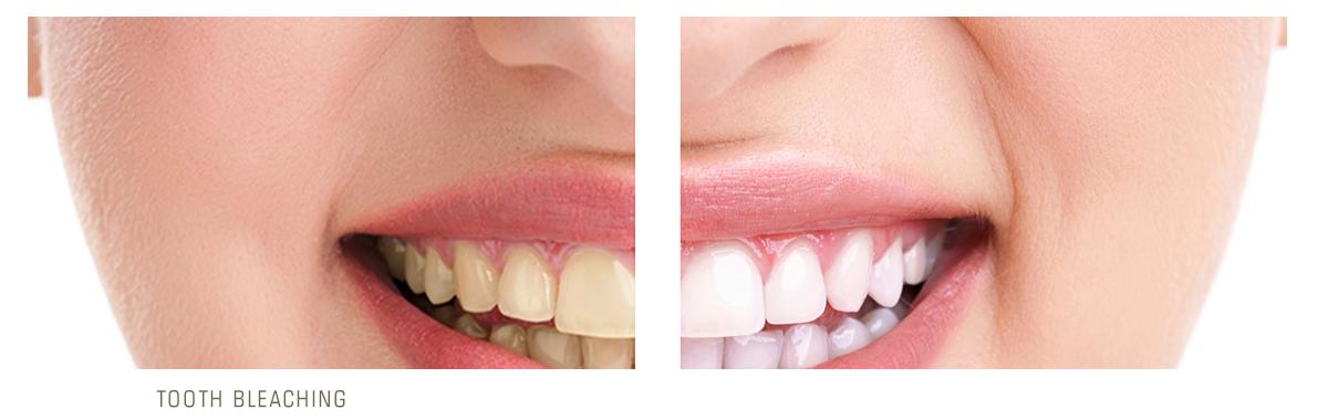 بلیچینگ دندان در دندانهایی که ترمیم شده اند
