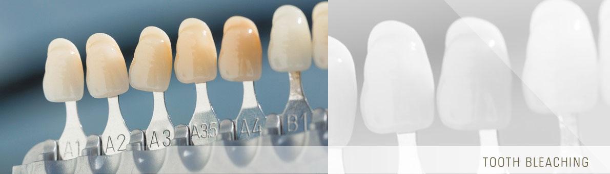 سفید شدن دندان ها با بلیچینگ