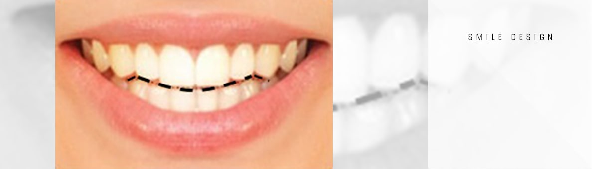 شکل لبه دندانی