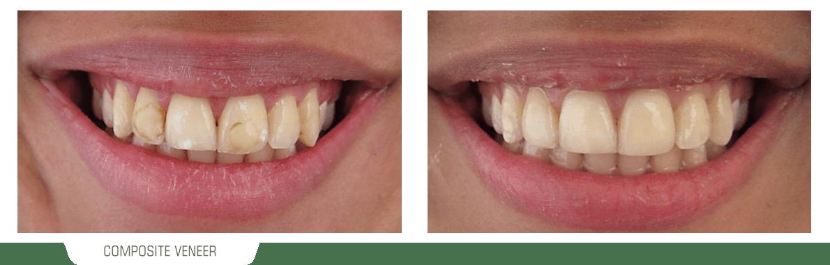 تصویر یک لبخند قبل و بعد از درمان ونیر کامپوزیت دندان