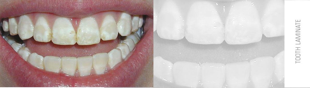 تصویر دندان هایدچار فلوئوروزیس