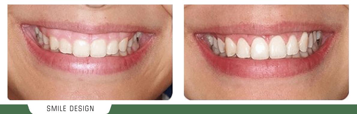 تصویر قبل و بعد اصلاح طرح لبخند لثه ای