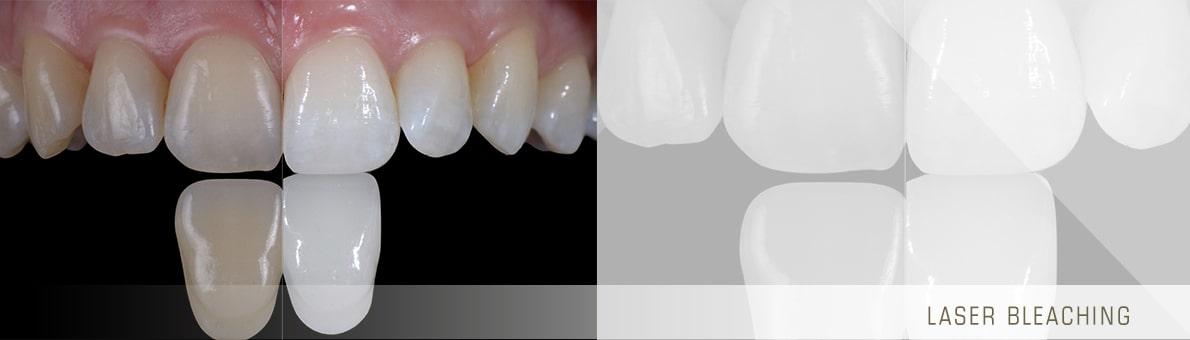 تصویر دندان قبل و بعد از بلیچینگ با لیزر