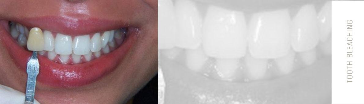 افزایش ماندگاری بلیچینگ دندان