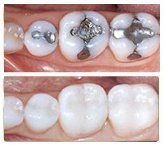 تعویض مواد پر کننده دندان
