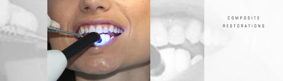 سفت شدن ترمیم کامپوزیتی دندان با کمک نور