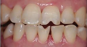 ابرژن بر روی دندانها