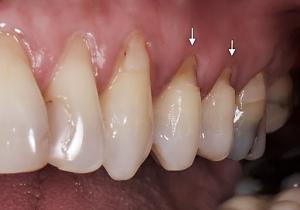 براکسیزم دندانی