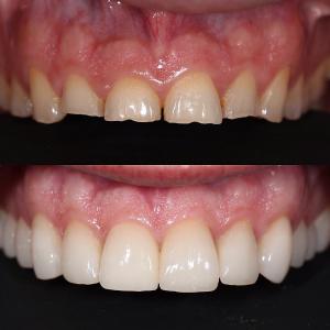 تغییر شکل دندانها