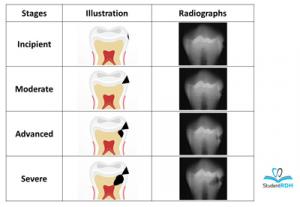 رادیوگرافی پوسیدگی دندان
