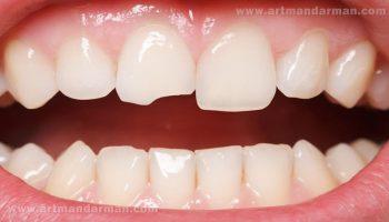 سایش دندان چیست