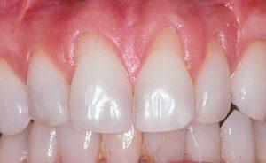 نمایان شدن ریشه دندان