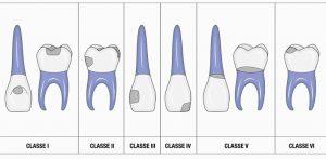 پوسیدگیهای دندان