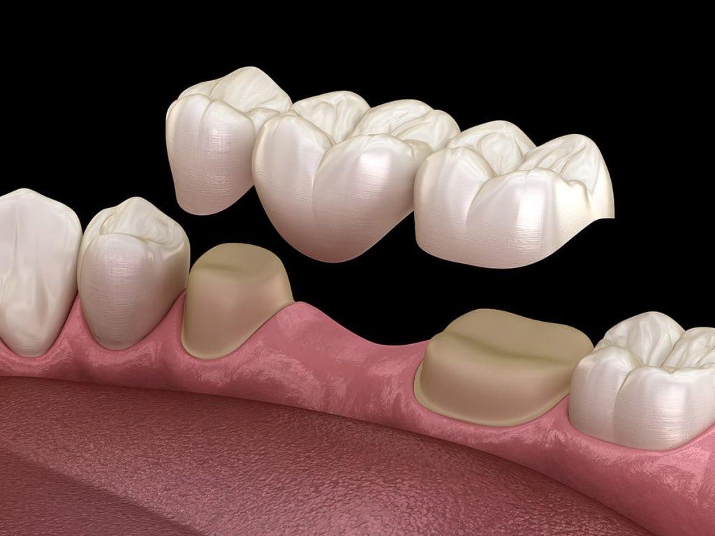 Dental Bridge vs Dental Implant | Greenwood Dental | Waukegan, IL