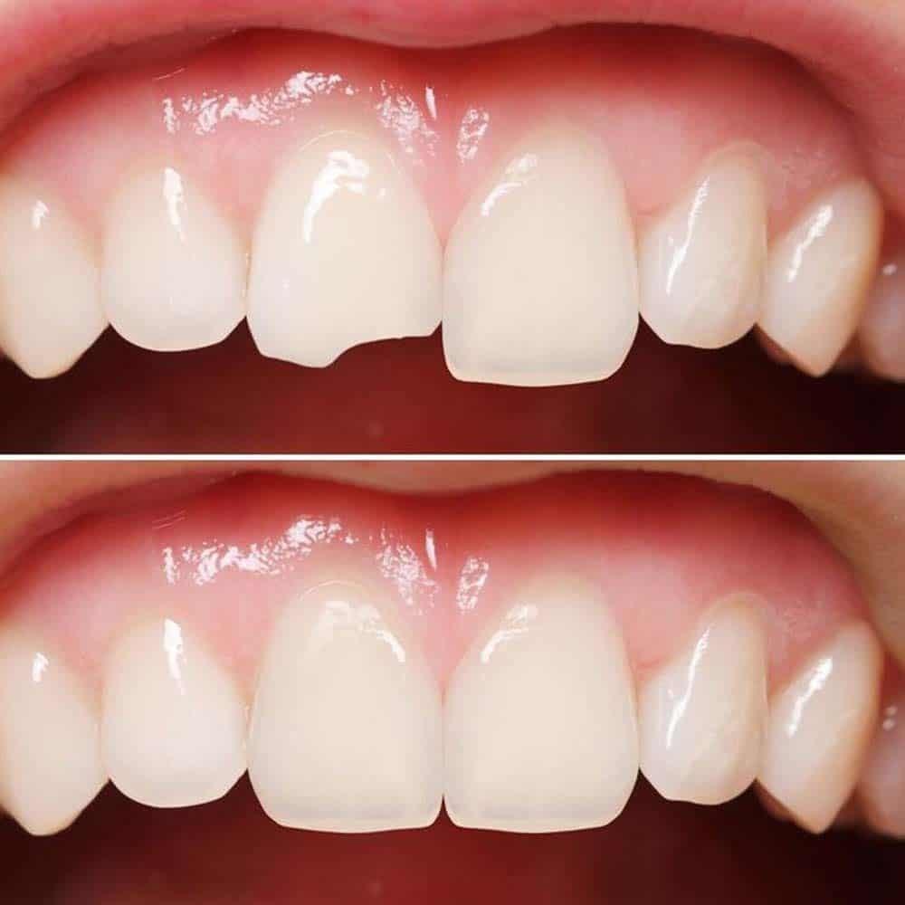 سایر کاربردهای کامپوزیت دندان 2