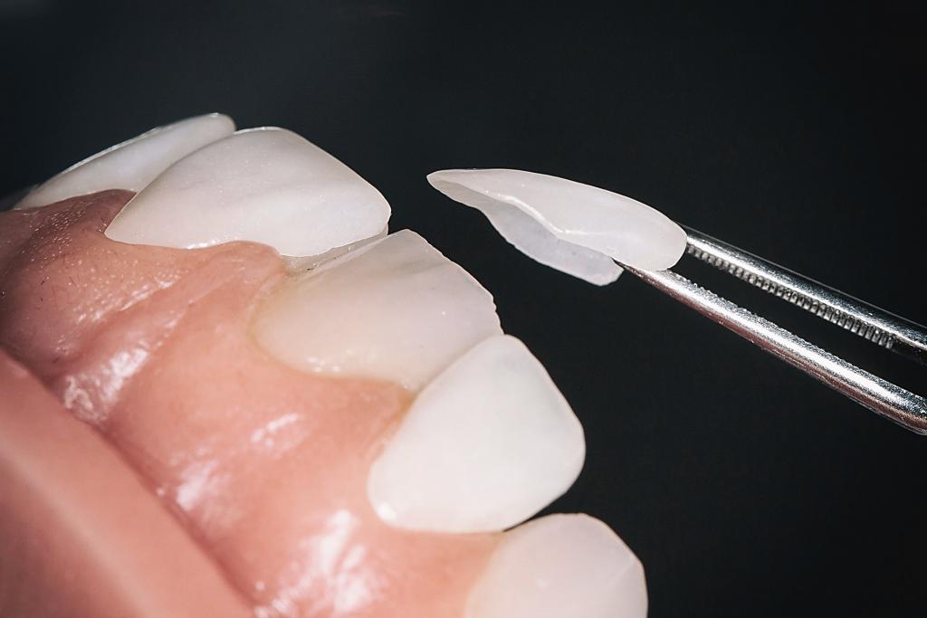 مرحله دوم لمینت دندان