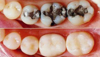 مراحل پر کردن دندان