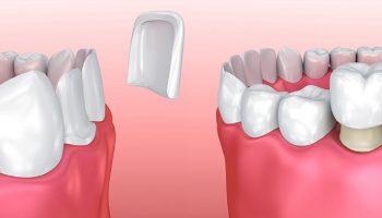 فرق روکش با ونیر دندان