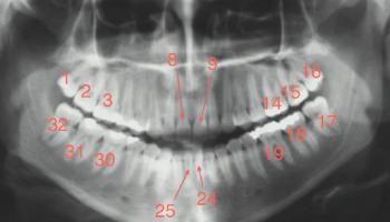 شماره گذاری دندان ها