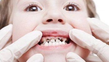 پوسیدگی دندان چیست