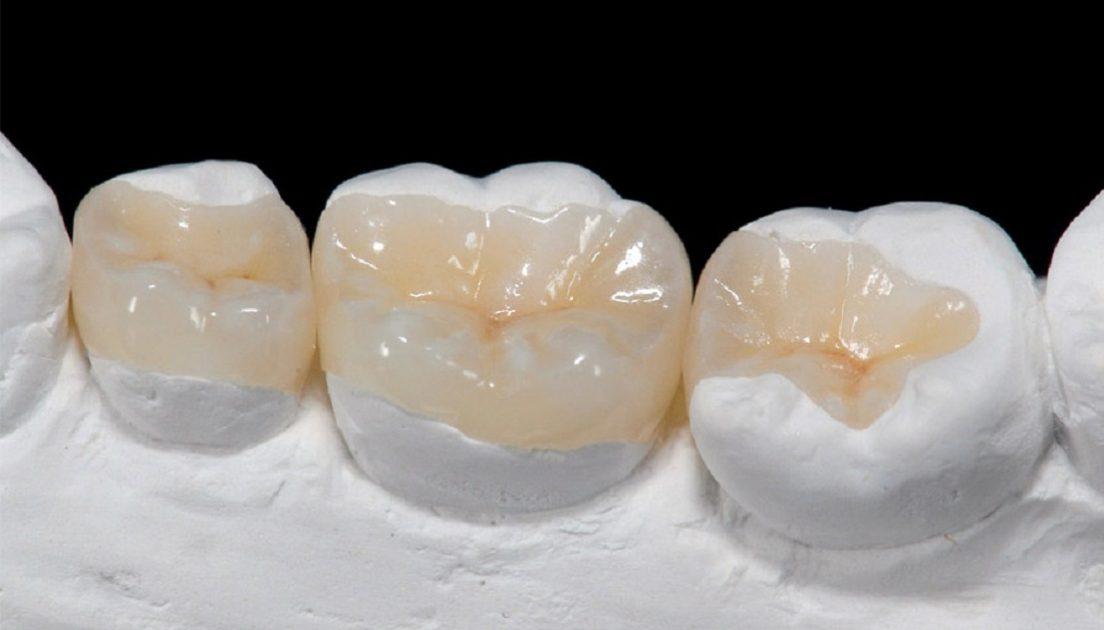 اینله و انله دندان چیست و هزینه آن چقدر است
