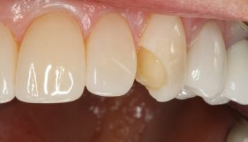 شکستن و افتادن لمینت دندان