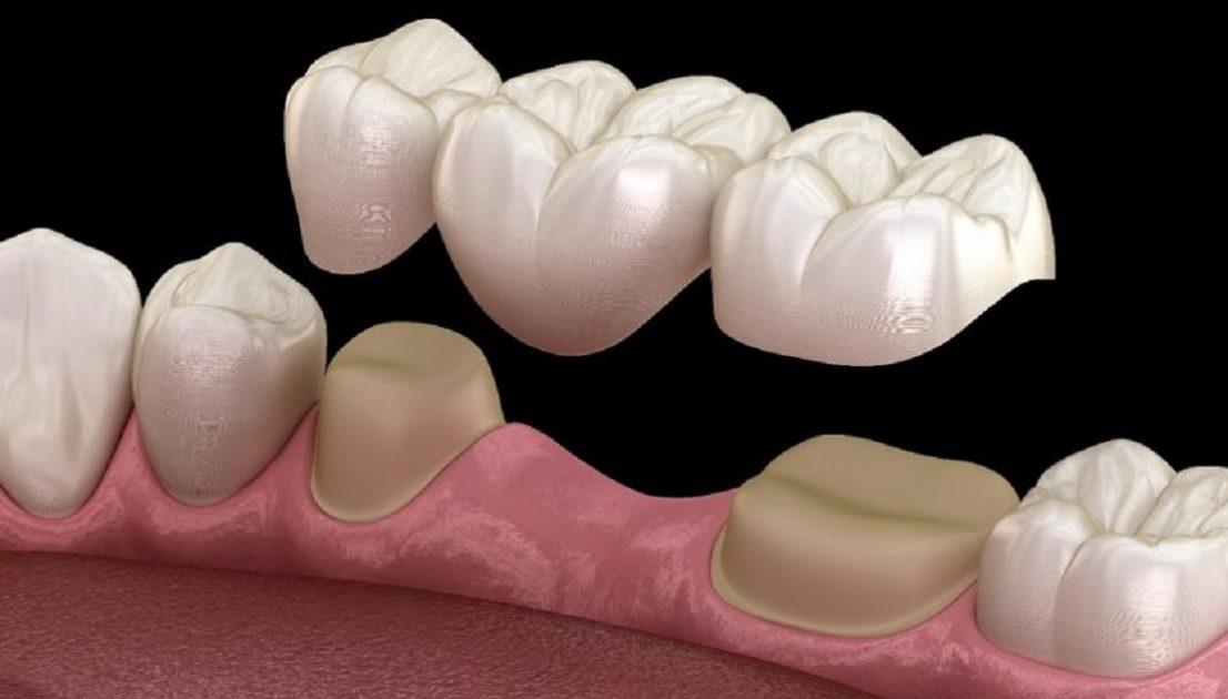 انواع بریج دندان