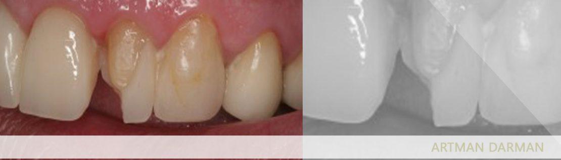 افتادن لمینت دندان