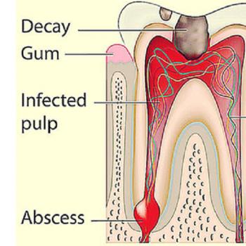 عفونت دندان و عفونت ریشه دندان تصویر