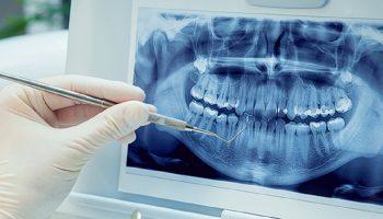 درمان ریشه مجدد دندان