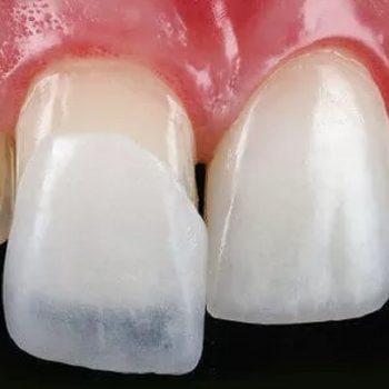 لمینت سرامیکی دندان