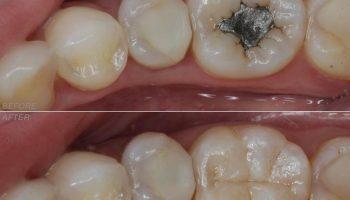 ترمیم کامپوزیت دندان