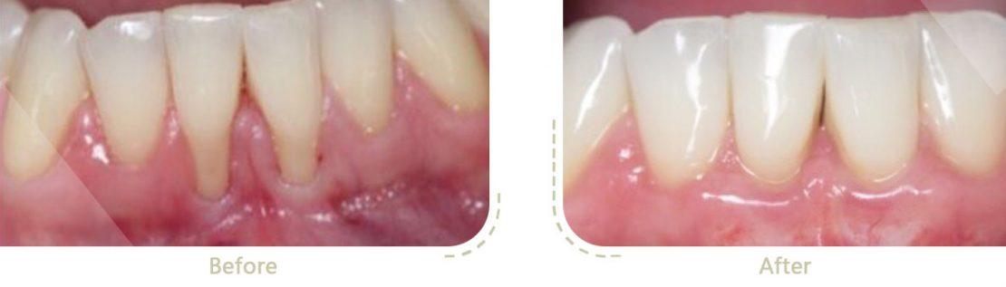 جراحی لثه برای خارج کردن پلاک و جرم دندان