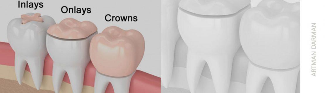 فرق اینله انله و روکش دندان