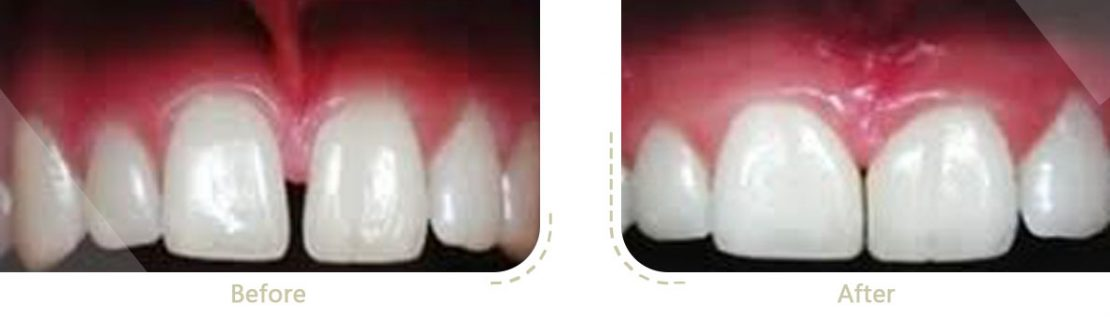 وجود فاصله بین دندان ها به دلیل بزرگتر شدن زائده فرنوم و برداشتن این زائده با لیزر